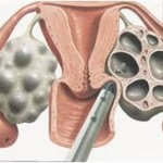 Embryo glue