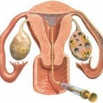 insemination (IUI) Method