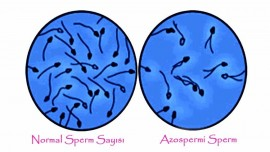 Azoospermia treatment